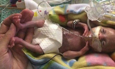 """""""Bebé milagro"""" nace a las 21 semanas de gestación"""