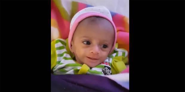 «bebé milagro»